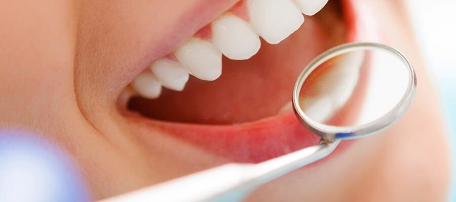 What Are Discount Dental Plans?